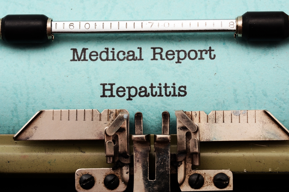 Antihistamine Medication May Be A Promising Treatment For Hepatitis C