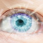 HCV and risk of cataracts